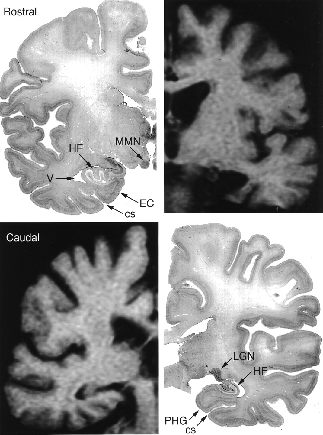 H Ms Medial Temporal Lobe Lesion Findings From Magnetic