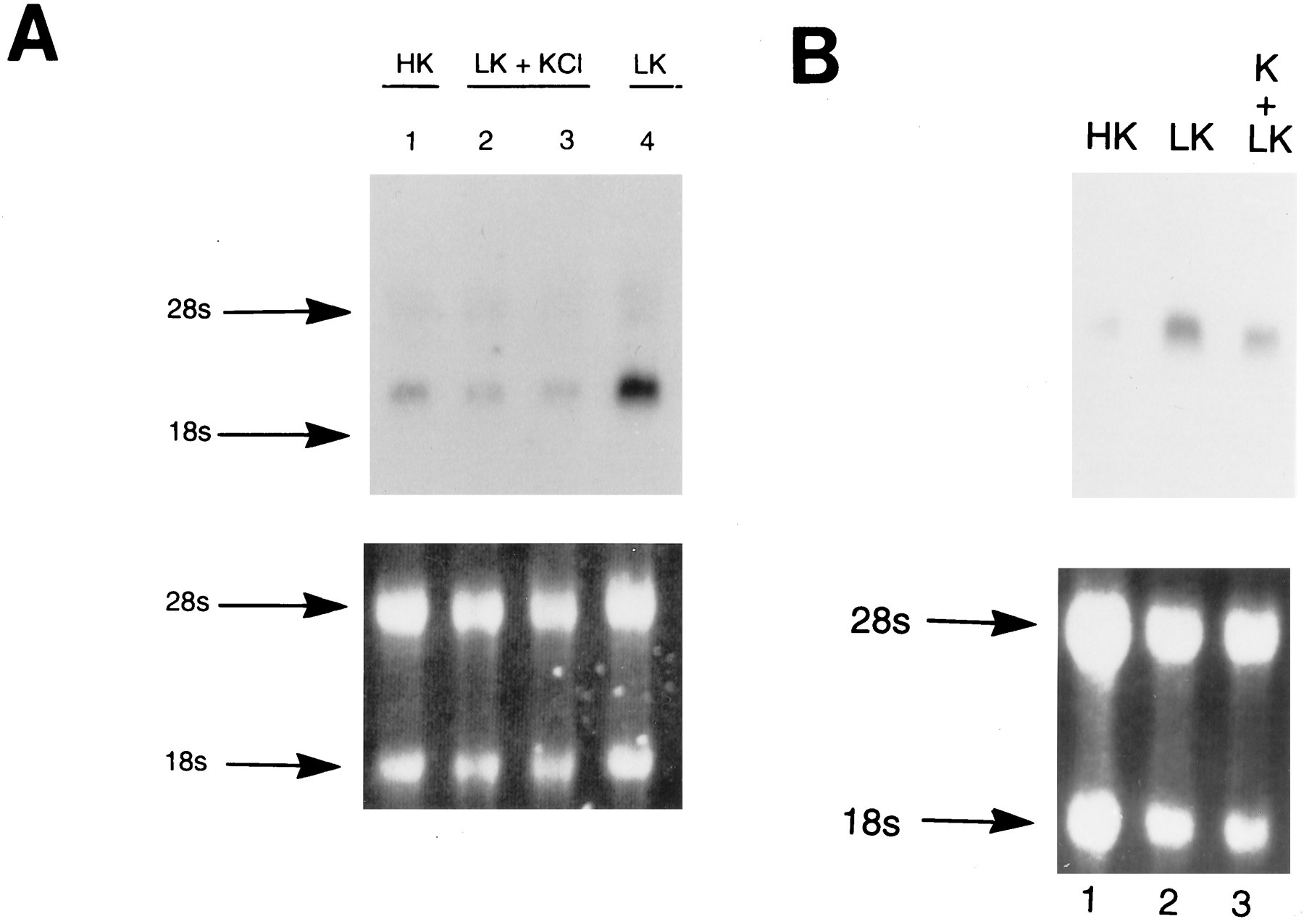 Cloning and Expression of a Rat Brain Interleukin-1β