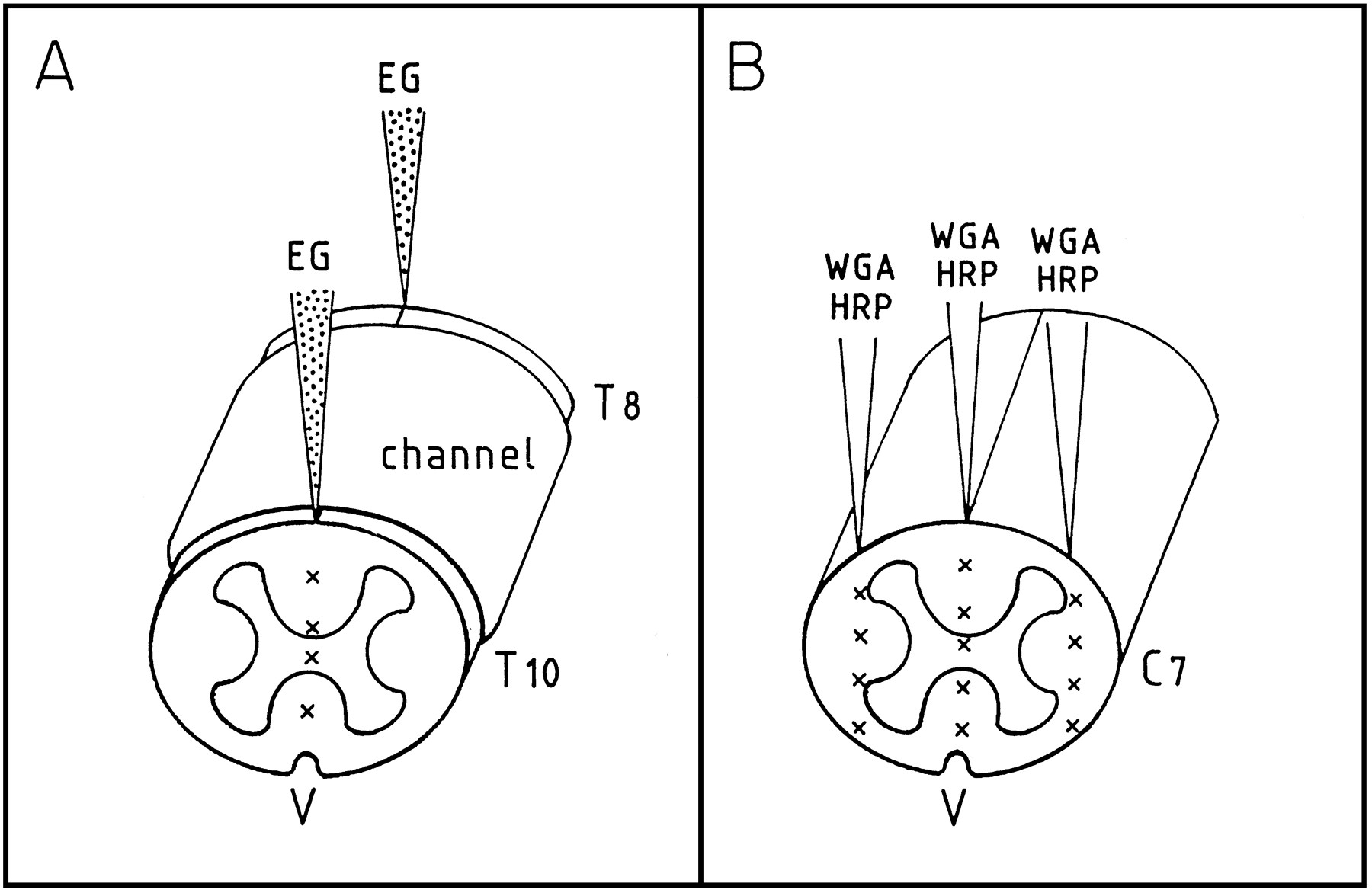 Long Distance Axonal Regeneration In The Transected Adult Rat Spinal