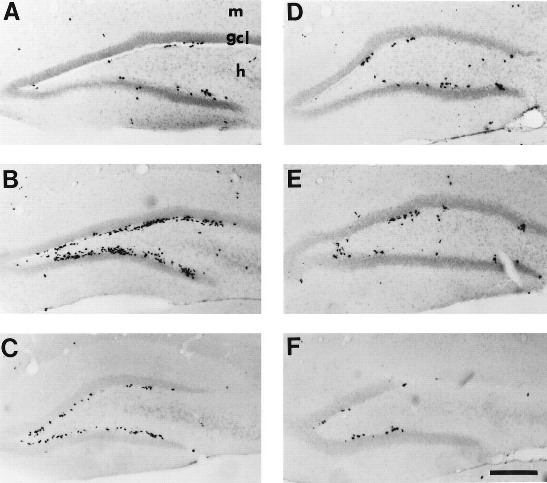 Increased Neurogenesis In The Dentate Gyrus After Transient Global