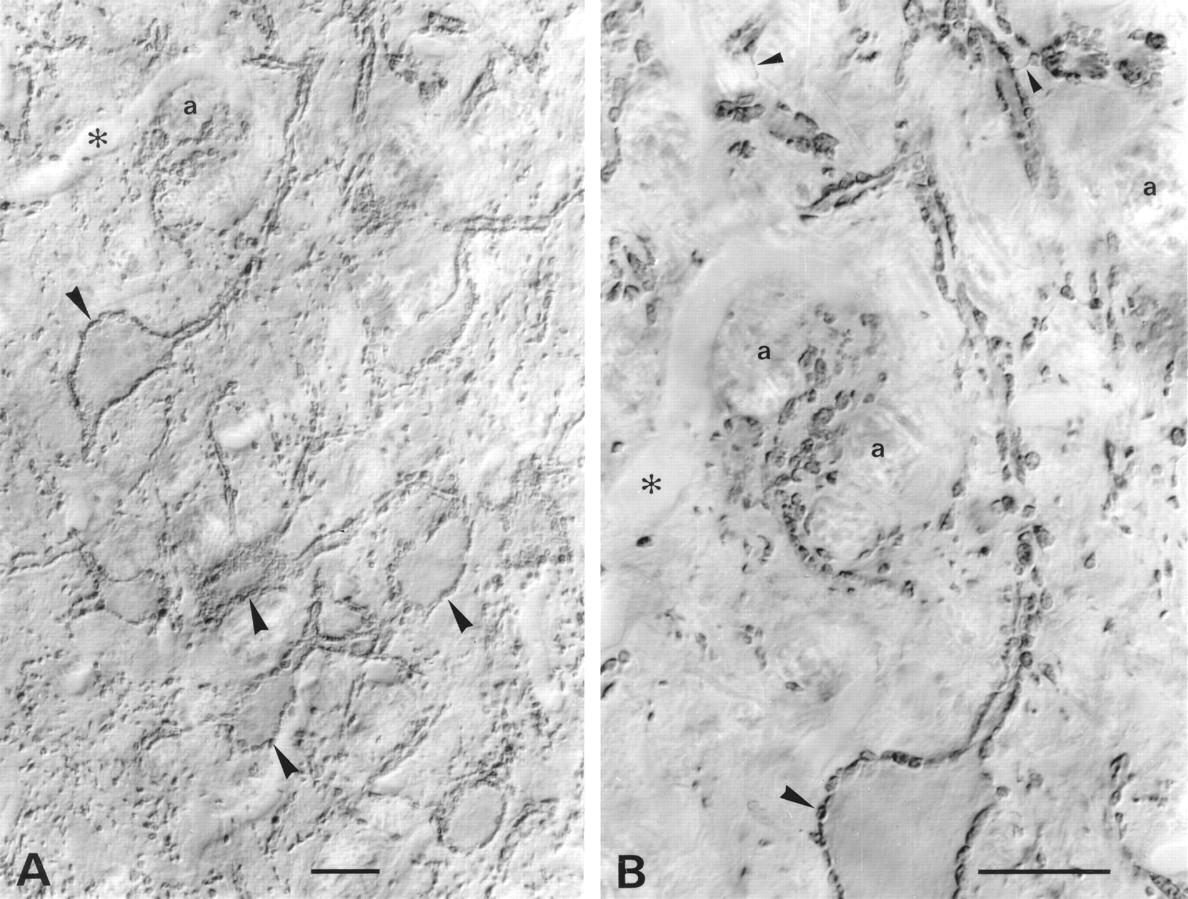 nucleus spinalis nervi trigemini
