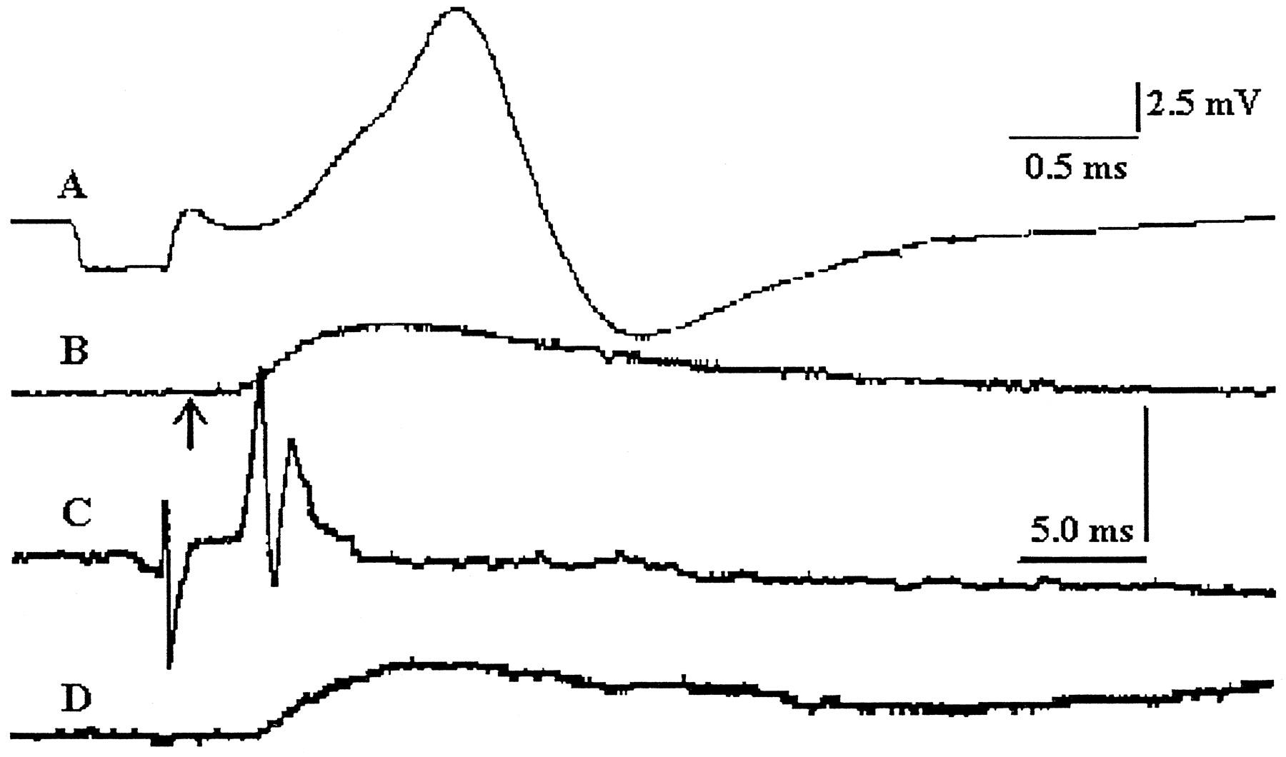 Extraocular Motor Unit And Whole Muscle Responses In The Lateral