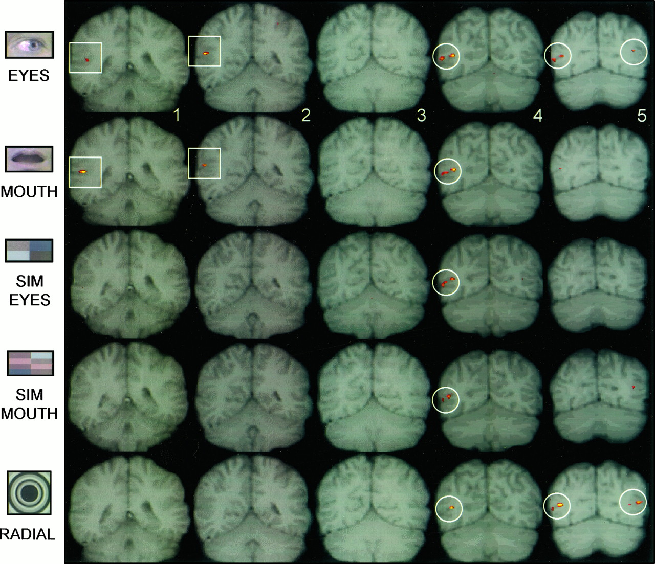Temporal Cortex Activation in Humans Viewing Eye and Mouth