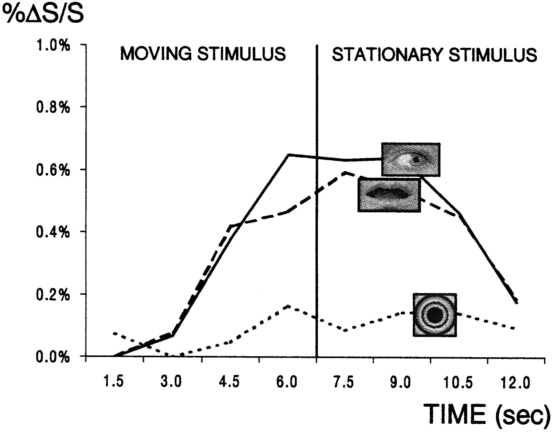 Temporal Cortex Activation in Humans Viewing Eye and Mouth Movements ...