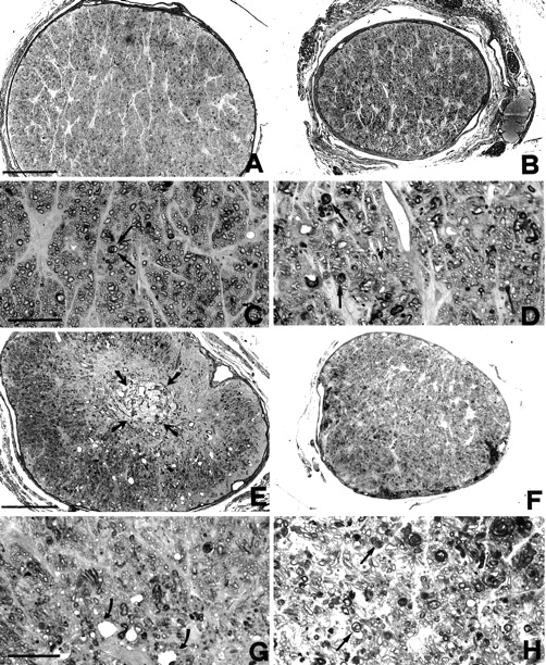 Optic Nerve Crush: Axonal Responses in Wild-Type and bcl-2