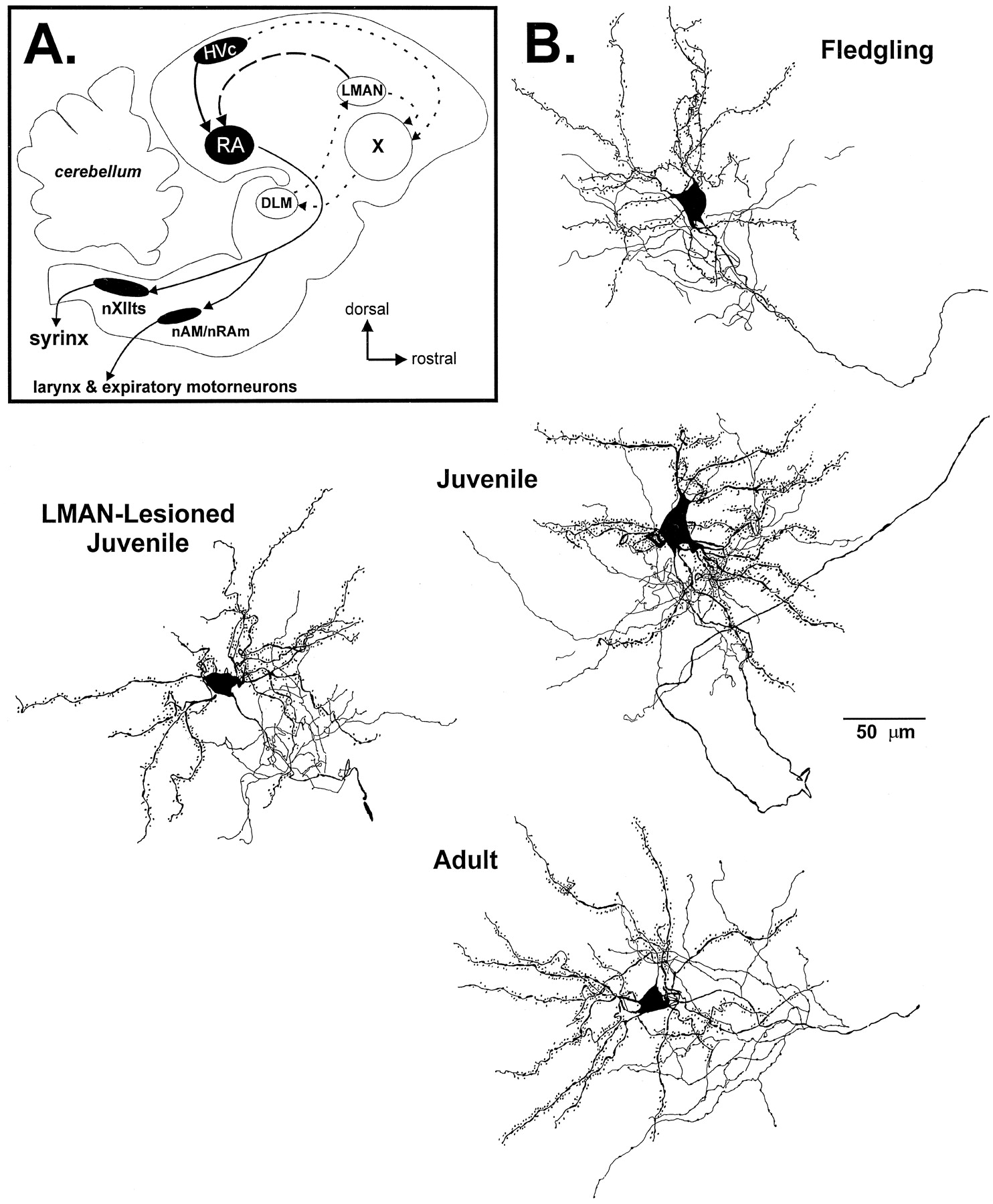 Lesions Of An Avian Forebrain Nucleus That Disrupt Song
