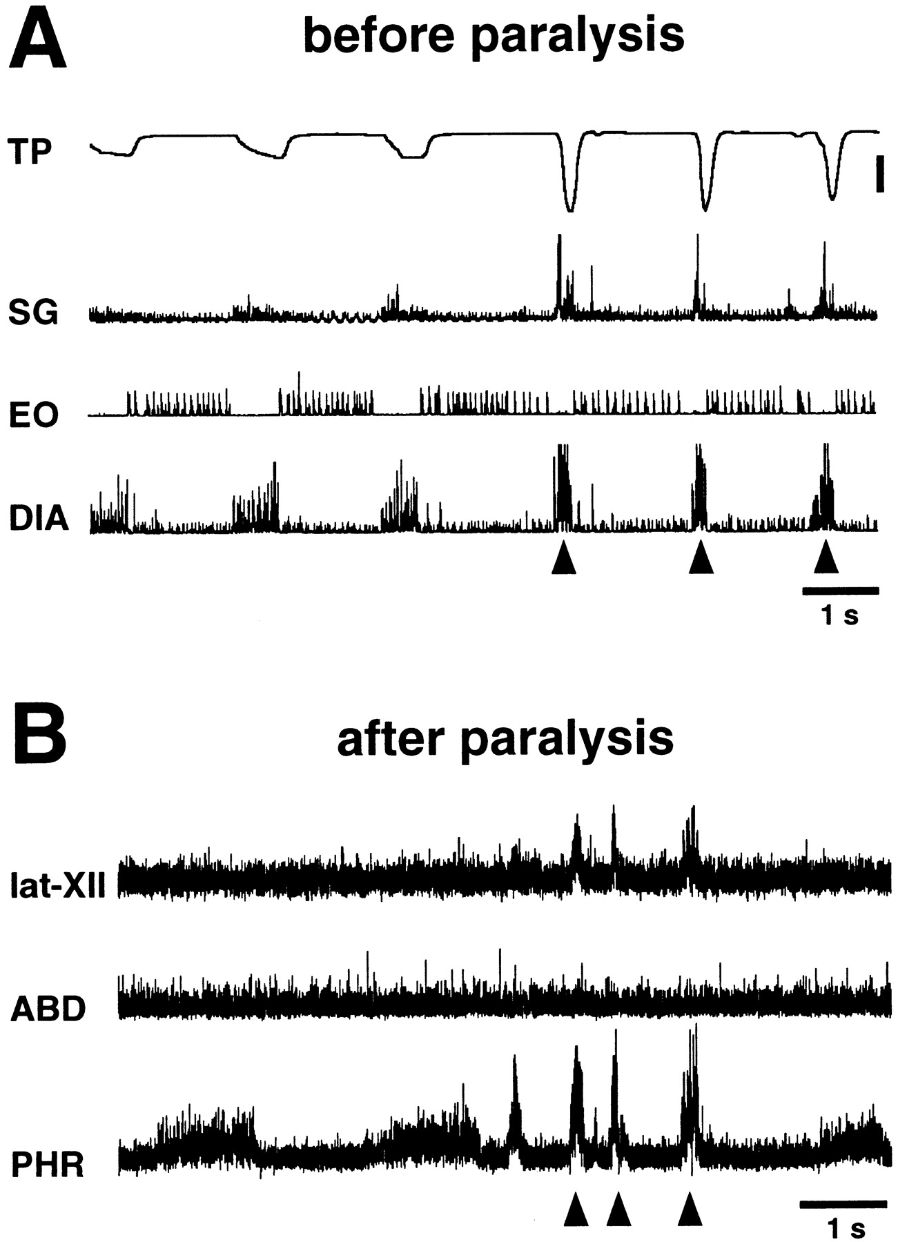 Multifunctional Laryngeal Motoneurons: an Intracellular Study in the ...