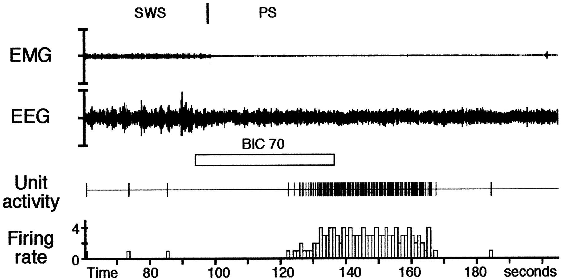 Role And Origin Of The Gabaergic Innervation Dorsal Raphe Atlas Honda Cd 70 Wiring Diagram Download Figure