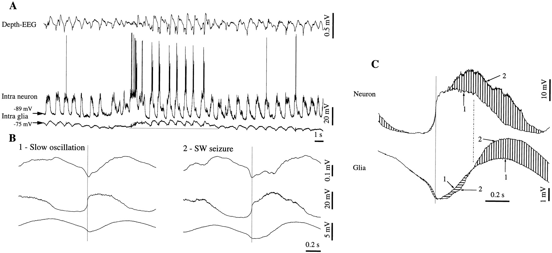 Neuronal and Glial Membrane Potentials during Sleep and Paroxysmal