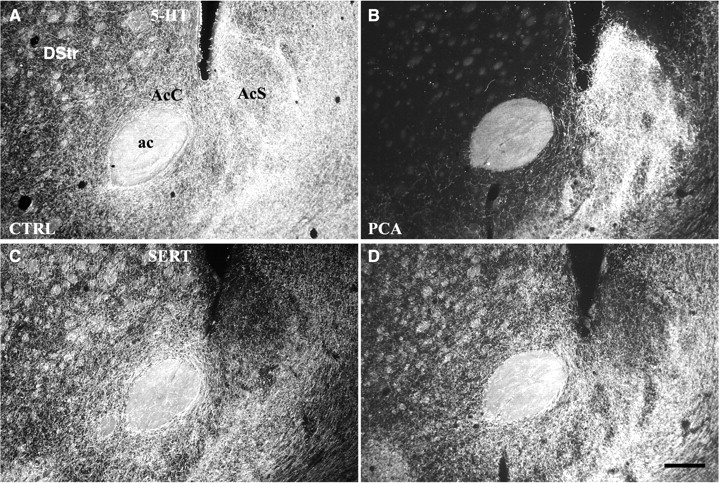 Dual serotonin 5 ht projections to the nucleus accumbens core and download figure ccuart Images