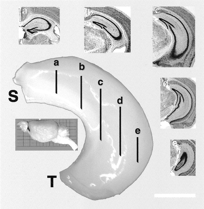 Complex Trait Analysis of the Hippocampus: Mapping and Biometric ...