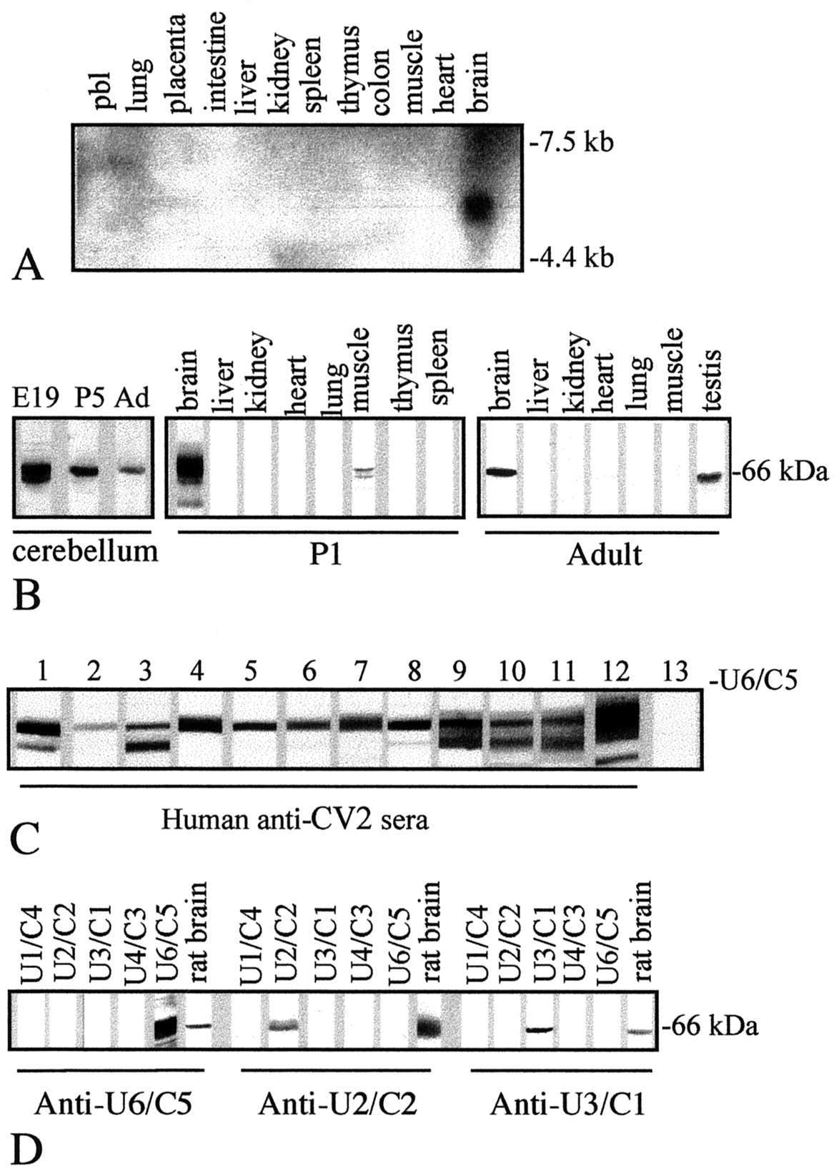 Isolation and Expression Pattern of Human Unc-33-Like Phosphoprotein