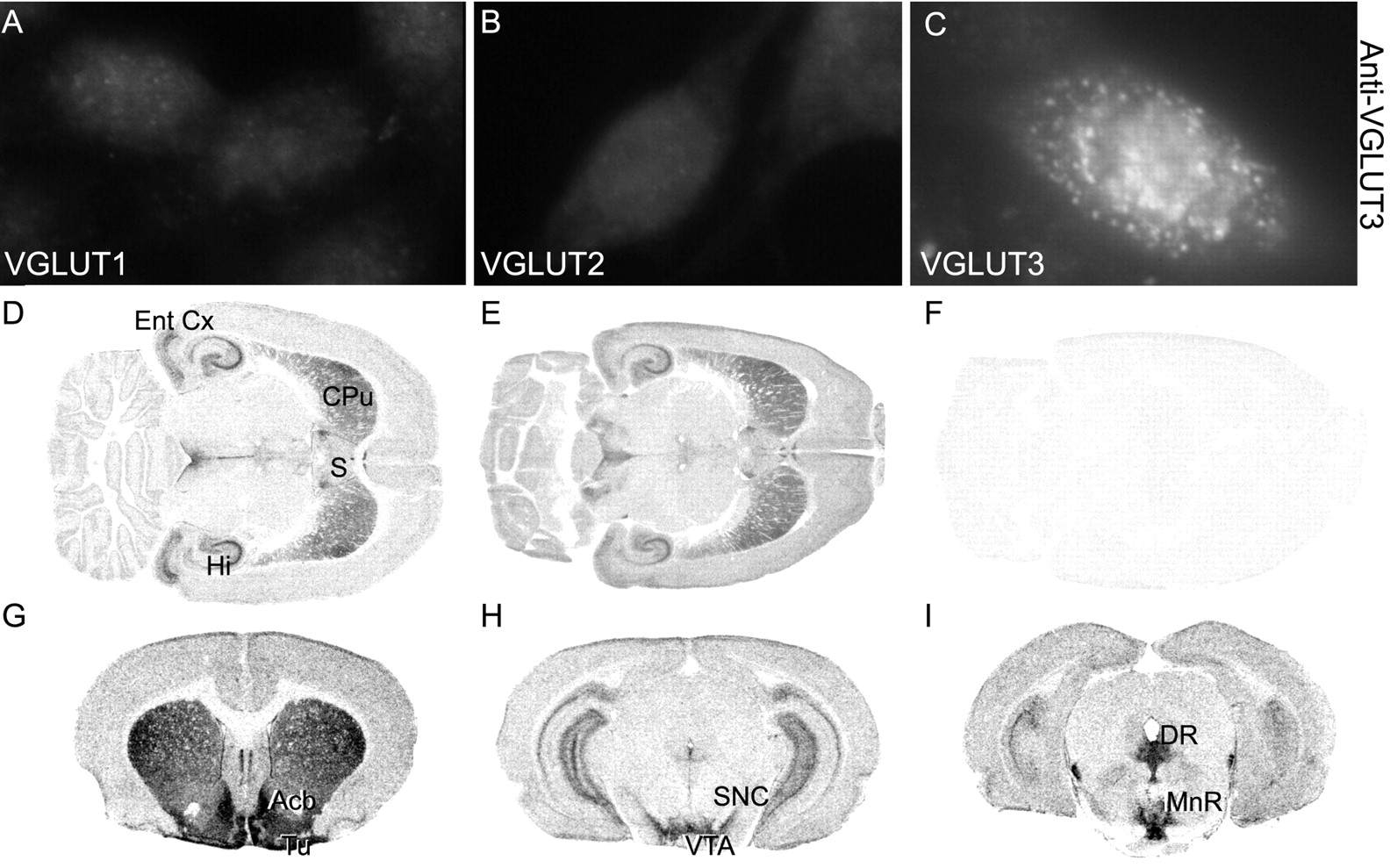 A Third Vesicular Glutamate Transporter Expressed by Cholinergic and