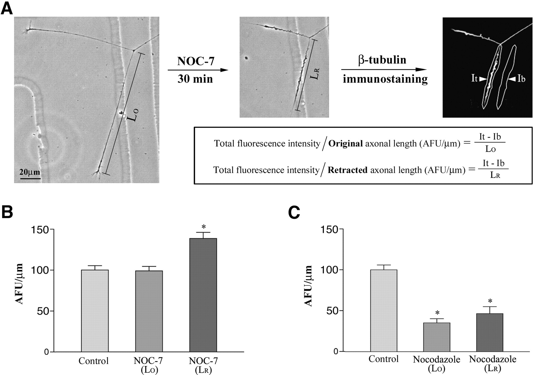 Microtubule Reconfiguration during Axonal Retraction Induced by ...