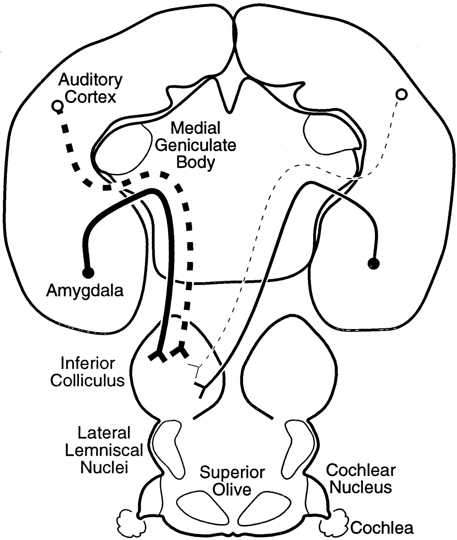 Projection to the Inferior Colliculus from the Basal Nucleus of the ...