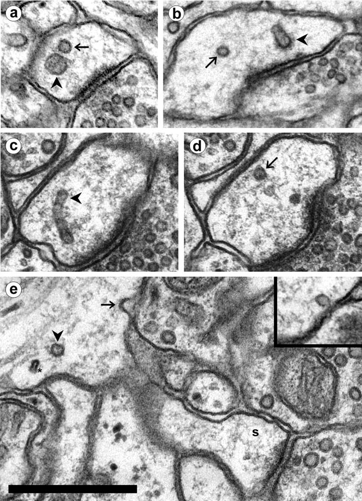 Endosomal Compartments Serve Multiple Hippocampal Dendritic Spines