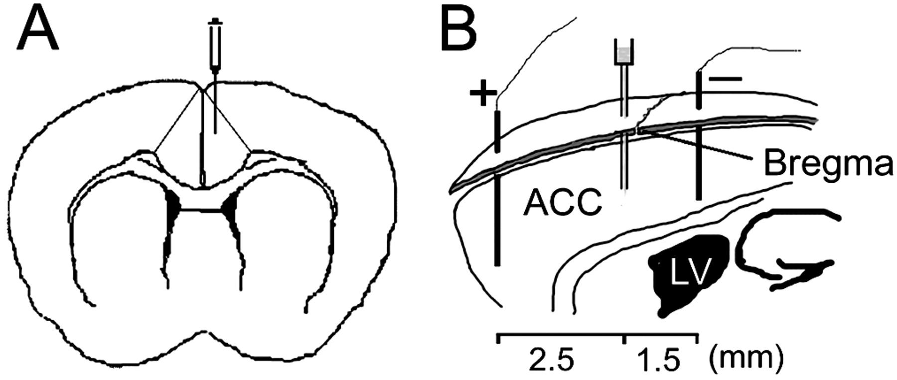 Calmodulin Regulates Synaptic Plasticity In The Anterior Cingulate