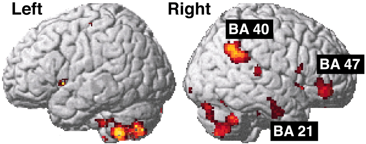 Brain Activation During Human Male Ejaculation Journal Of Neuroscience