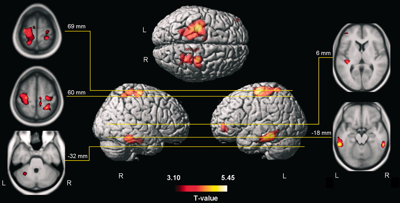Brain Structures Differ between Musicians and Non-Musicians ...