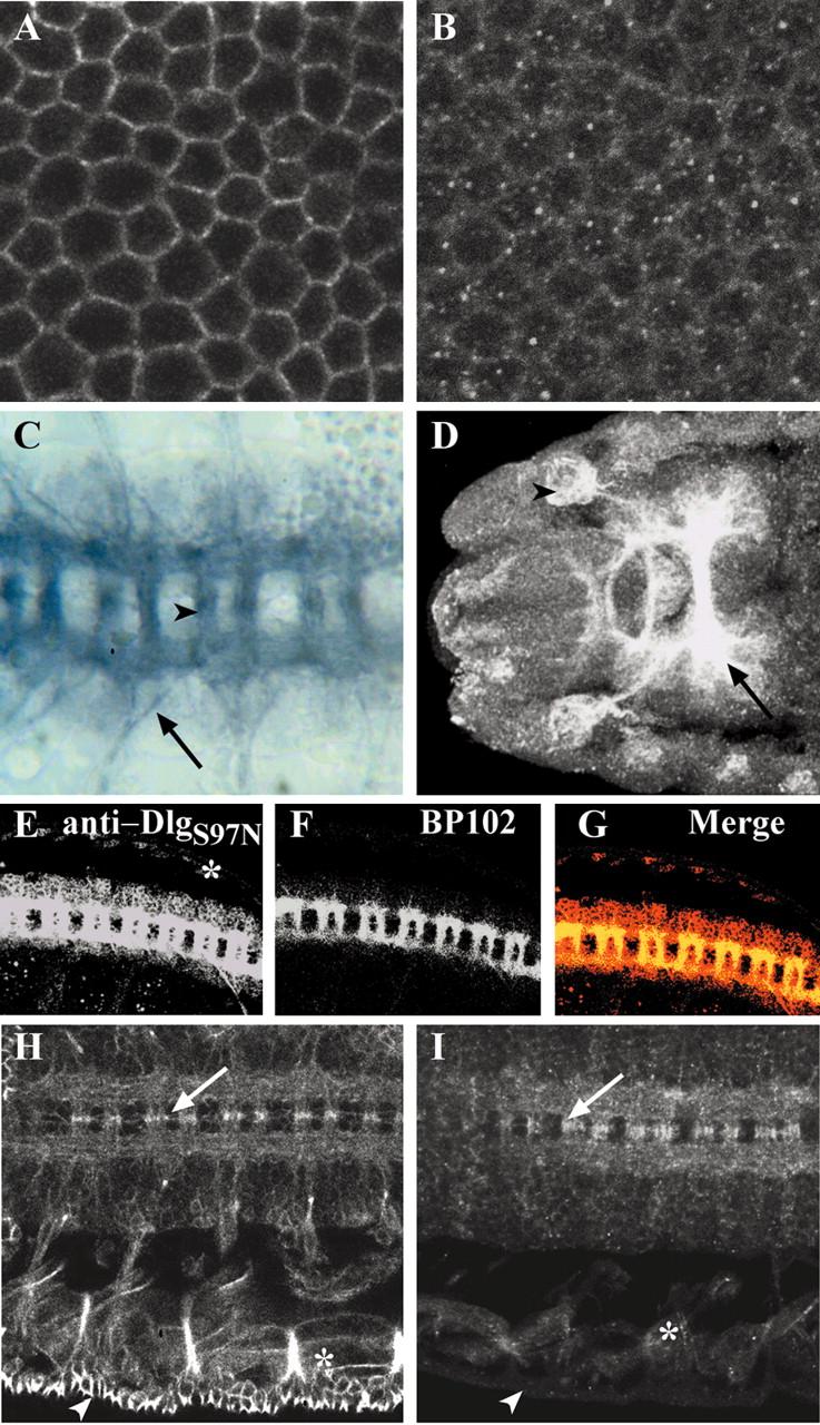 Novel Isoforms of Dlg Are Fundamental for Neuronal Development
