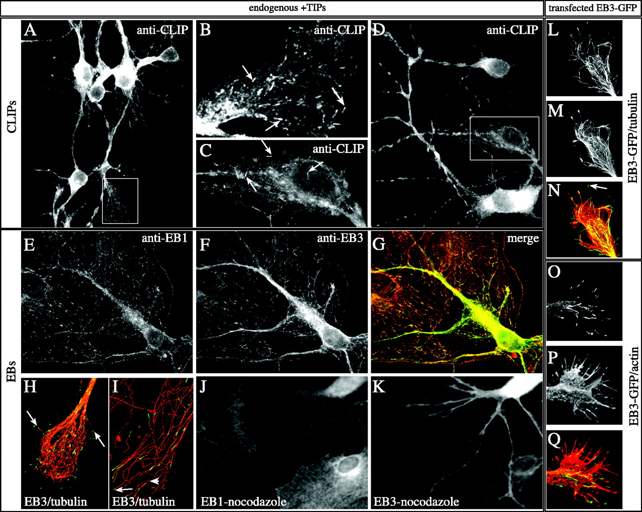 Visualization of Microtubule Growth in Cultured Neurons via