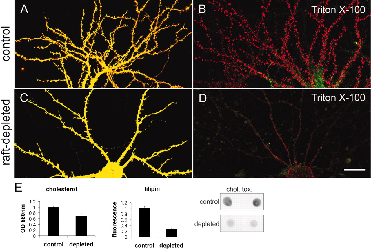 Lipid Rafts in the Maintenance of Synapses, Dendritic Spines