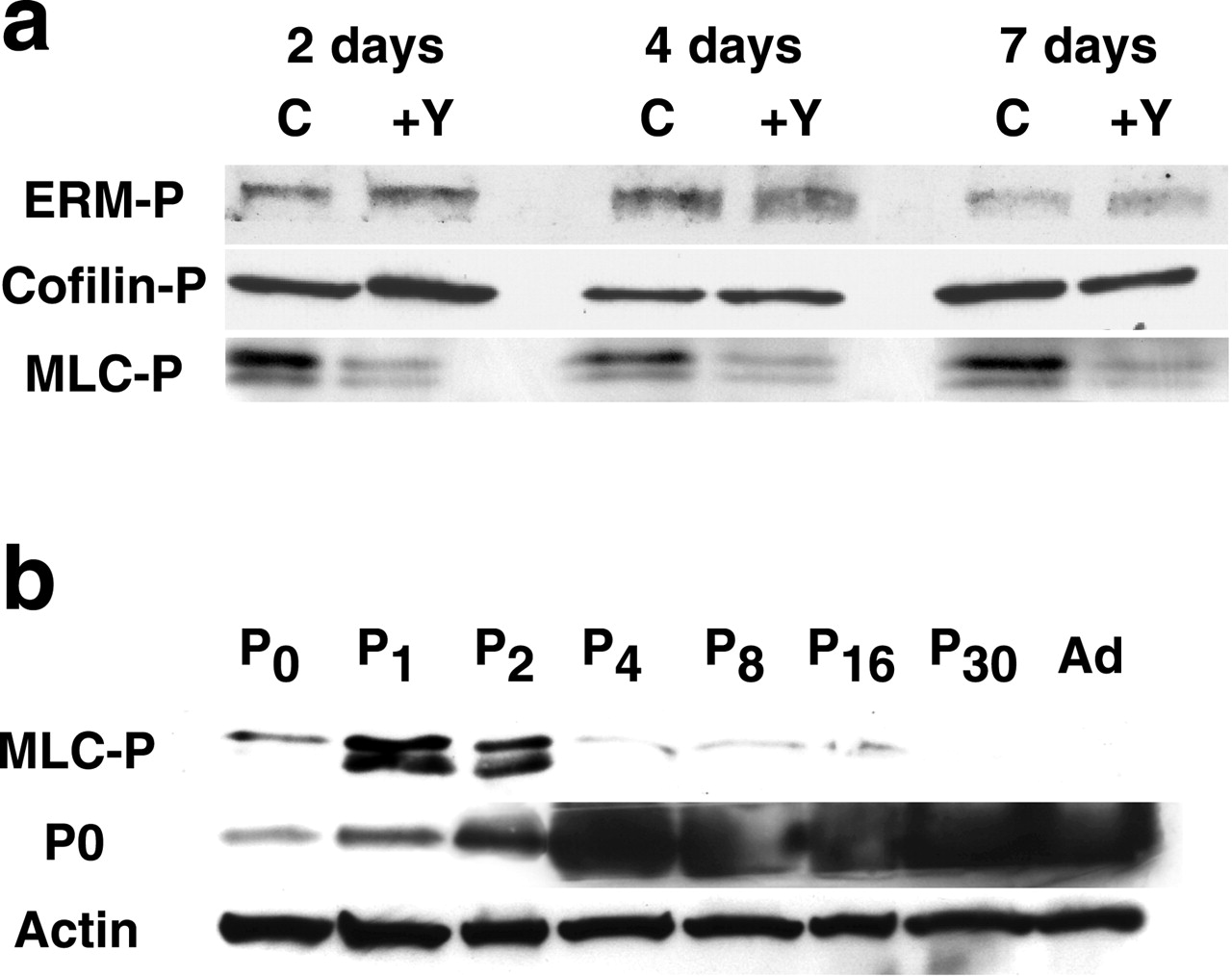Rho Kinase Regulates Schwann Cell Myelination and Formation