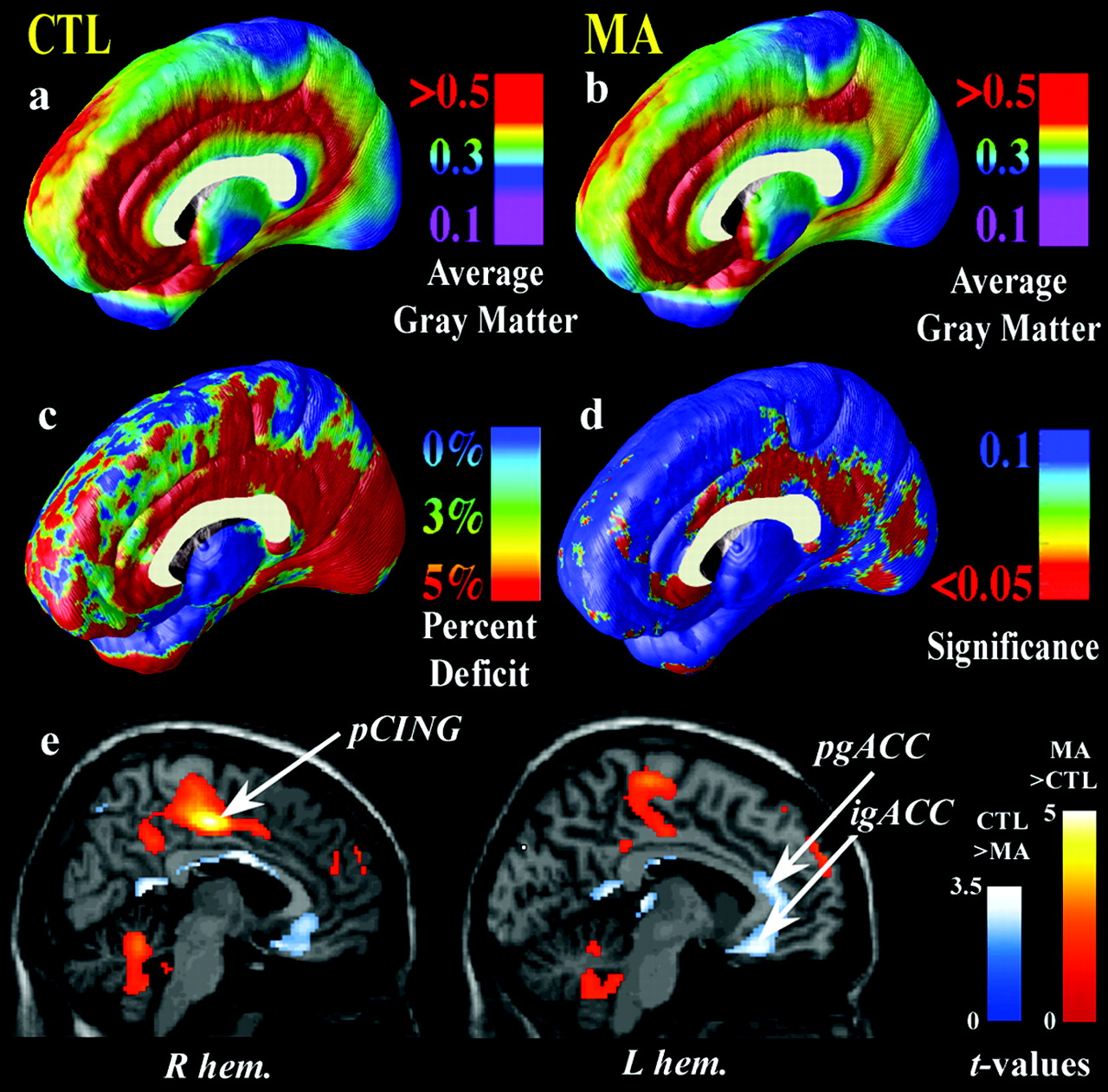 Structural Abnormalities in the Brains of Human Subjects Who Use ...