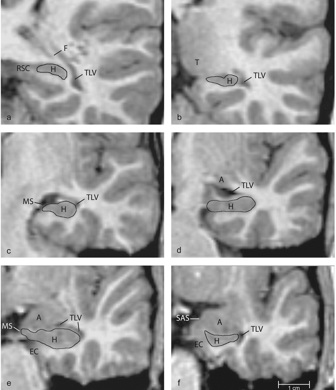 The Amygdala Is Enlarged In Children But Not Adolescents With Autism