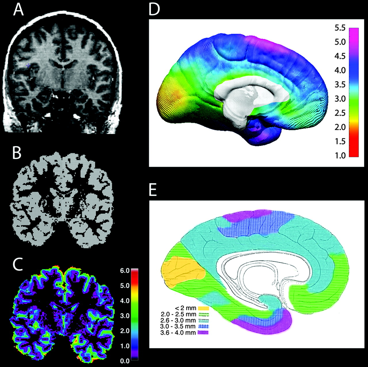 Childrens and adults cerebral cortex