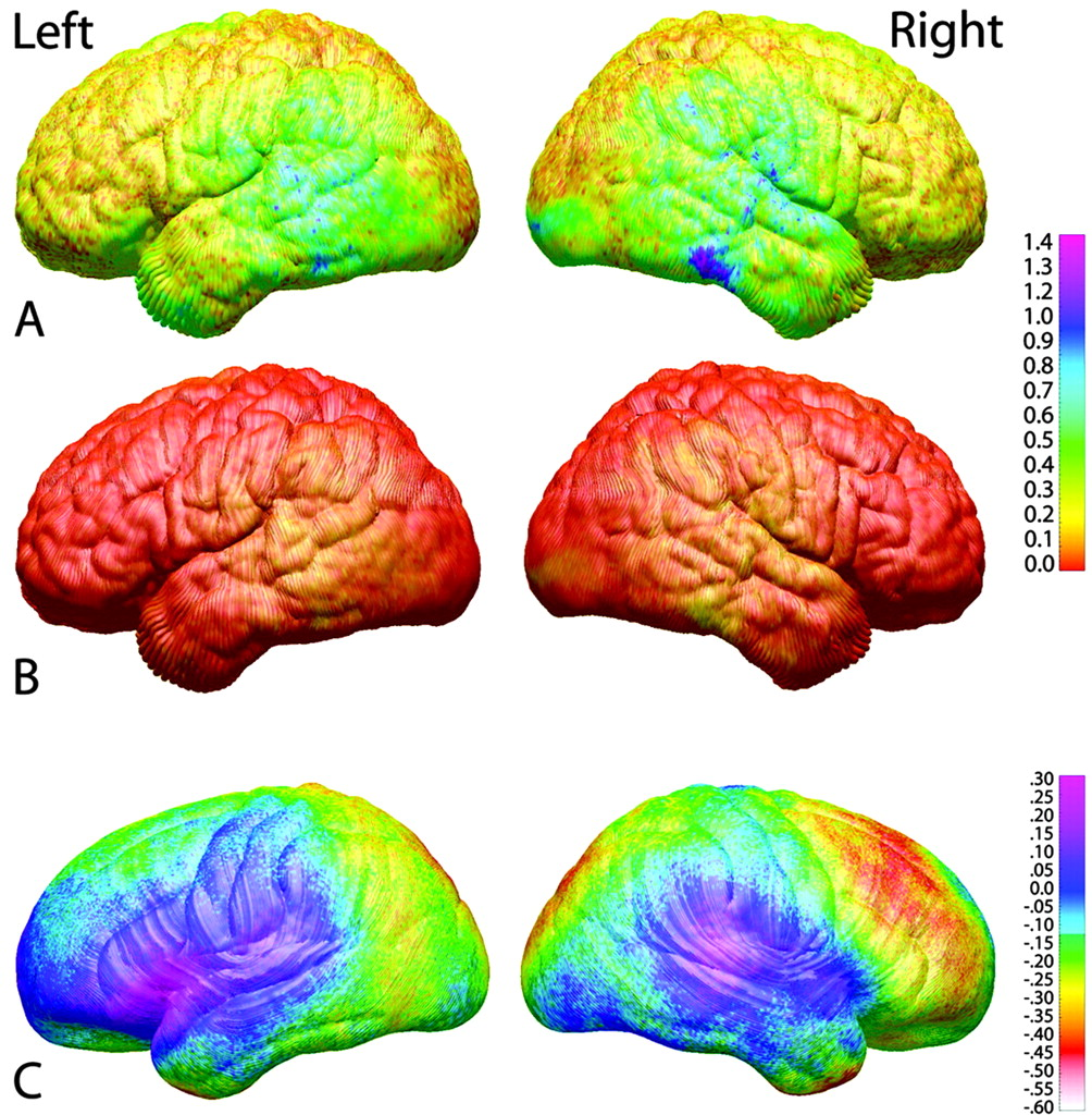Map Of Developing Human Brain Shows >> Longitudinal Mapping Of Cortical Thickness And Brain Growth In