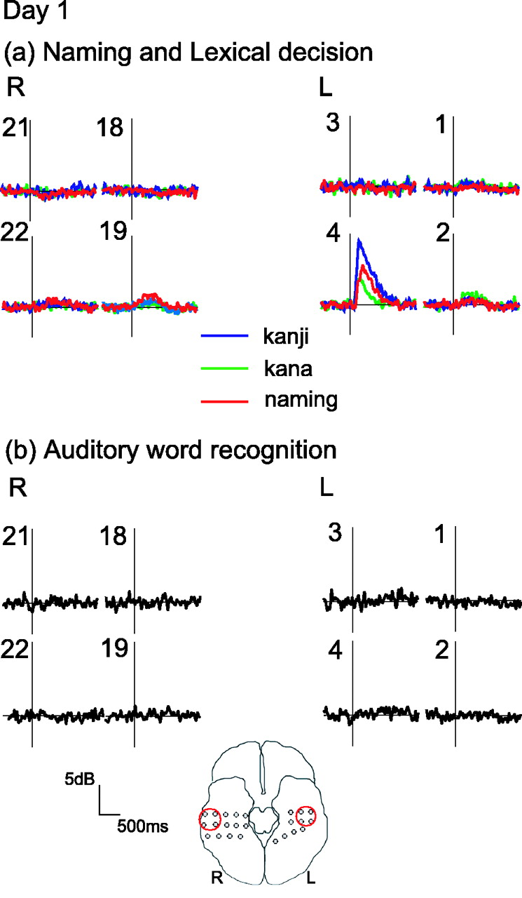 High-Frequency γ-Band Activity in the Basal Temporal Cortex