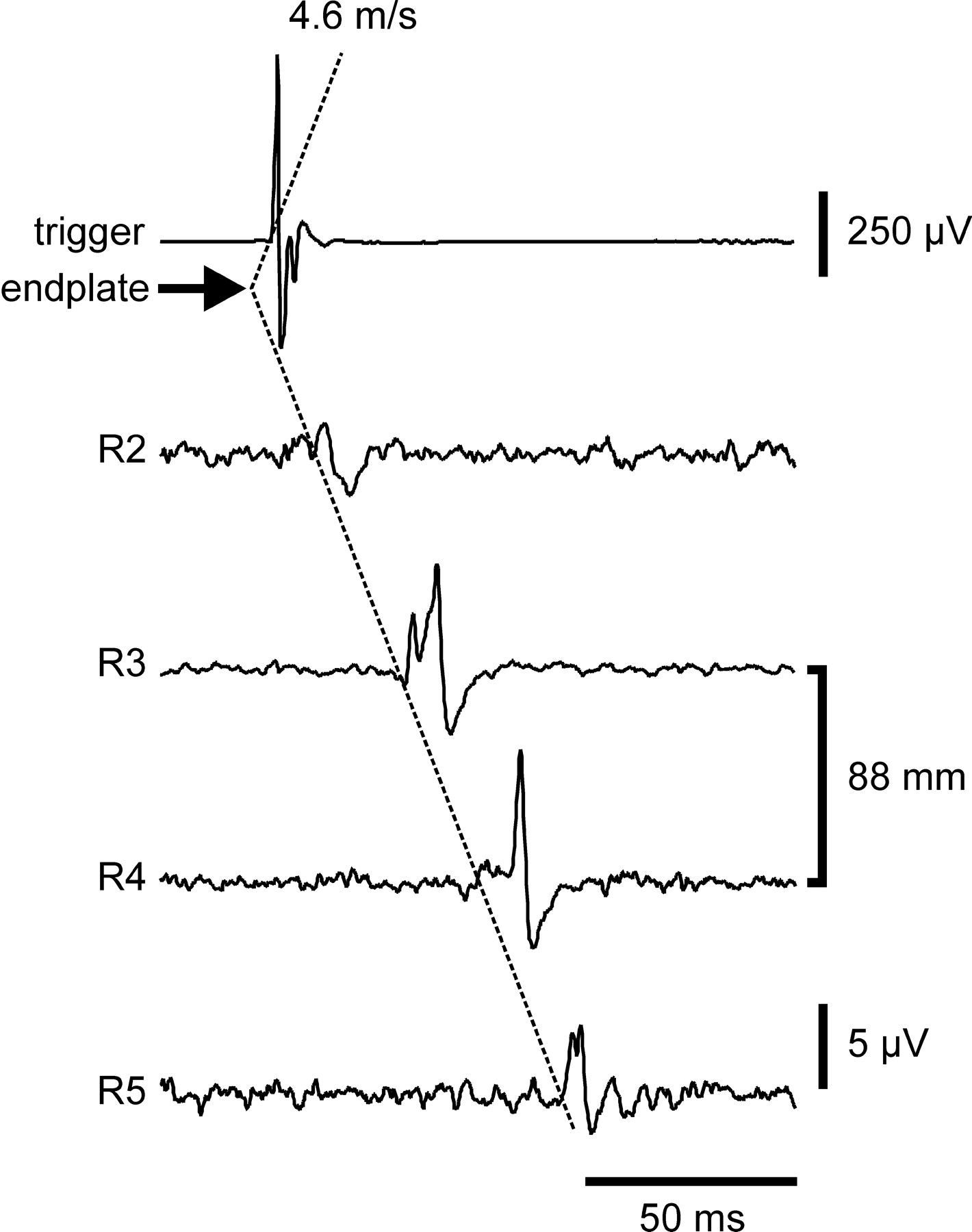 Muscle Fiber And Motor Unit Behavior In The Longest Human Skeletal 1973 Evinrude 135 Wiring Diagram Download Figure