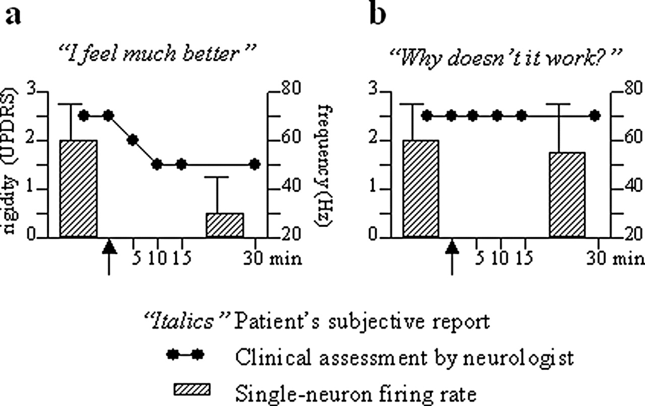 Neurobiological Mechanisms Of The Placebo Effect Journal Circuit Like This Really Involves And That You Keep Them Separate Download Figure