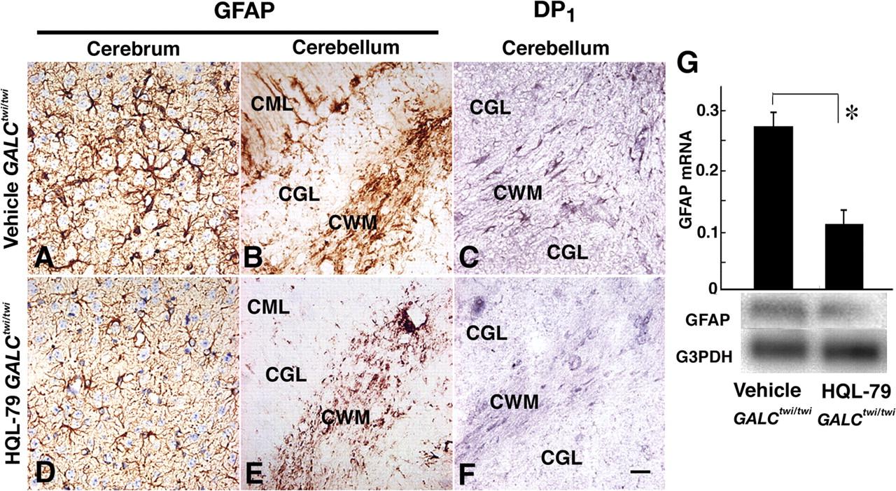 Prostaglandin D2-Mediated Microglia/Astrocyte Interaction