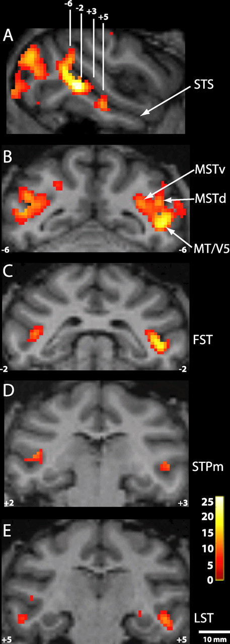 Charting the Lower Superior Temporal Region, a New Motion