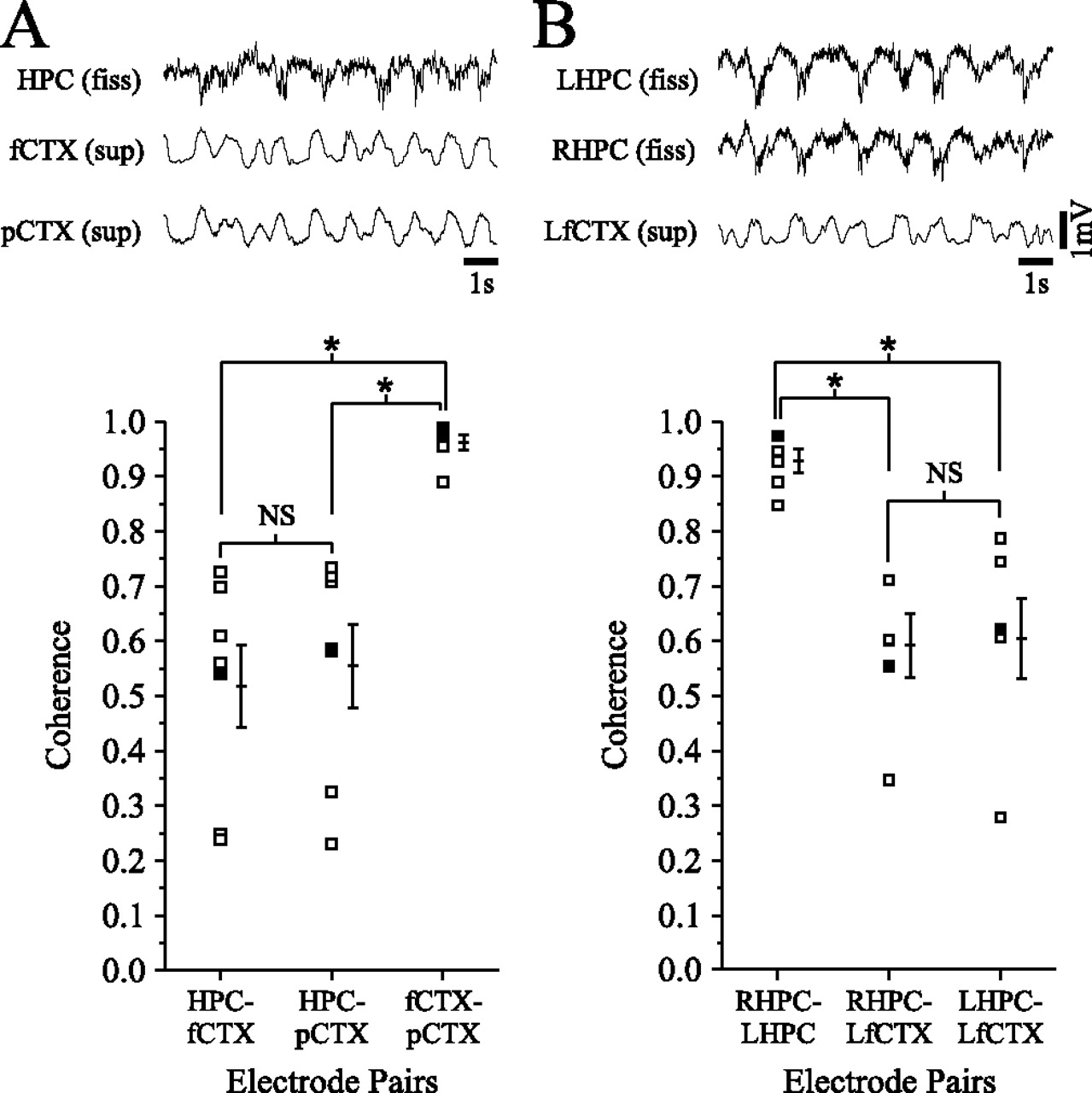 Hippocampal Slow Oscillation A Novel Eeg State And Its Coordination Rem Amplifier Wiring Diagram Download Figure