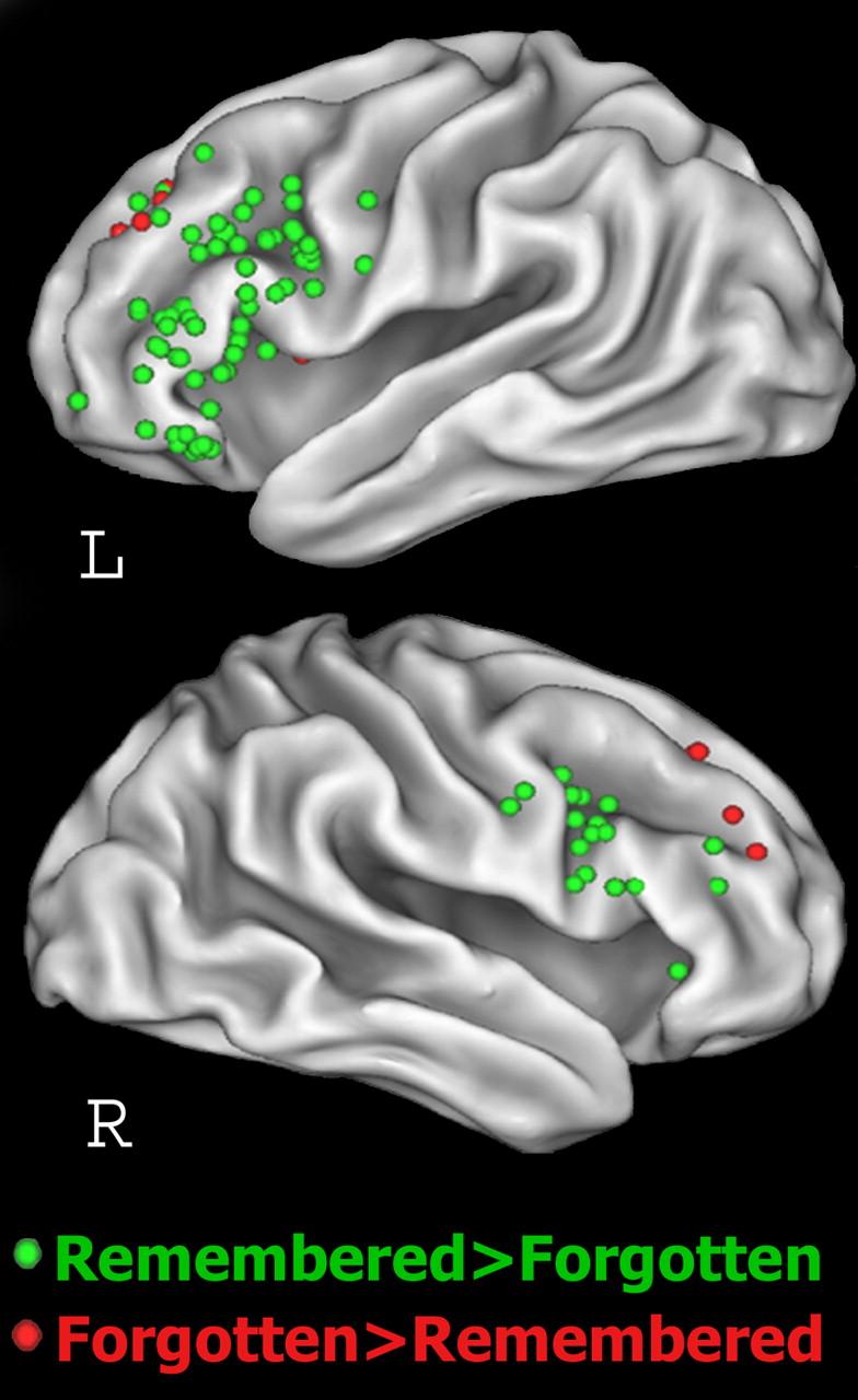 Dorsolateral Prefrontal Cortex Promotes Long-Term Memory Formation ...