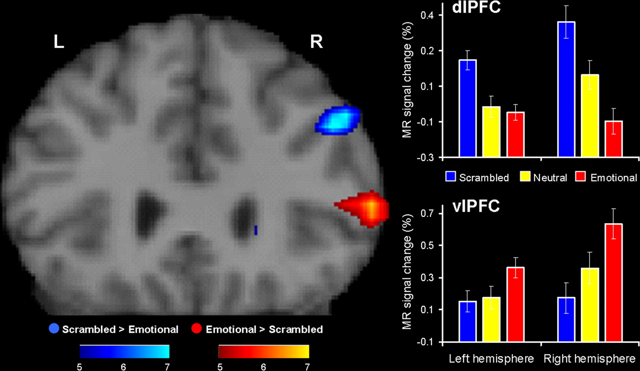 Brain Systems Mediating Cognitive Interference by Emotional