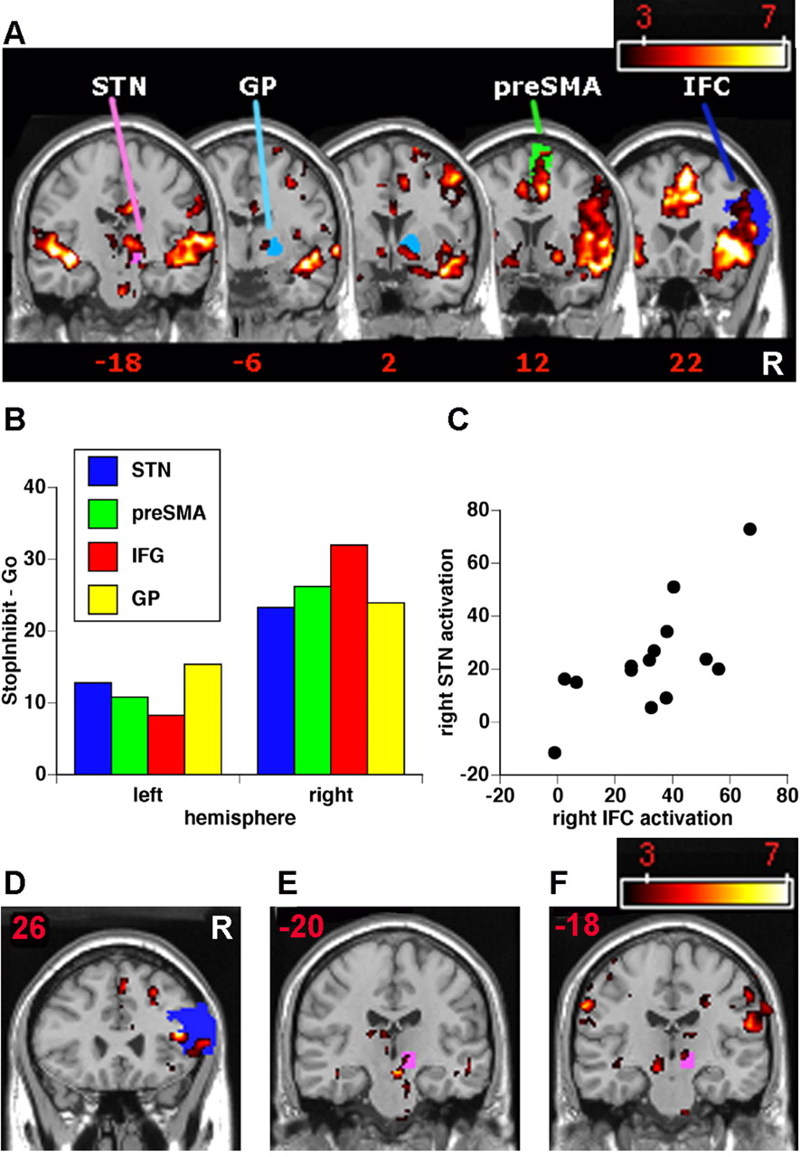 Cortical and Subcortical Contributions to Stop Signal