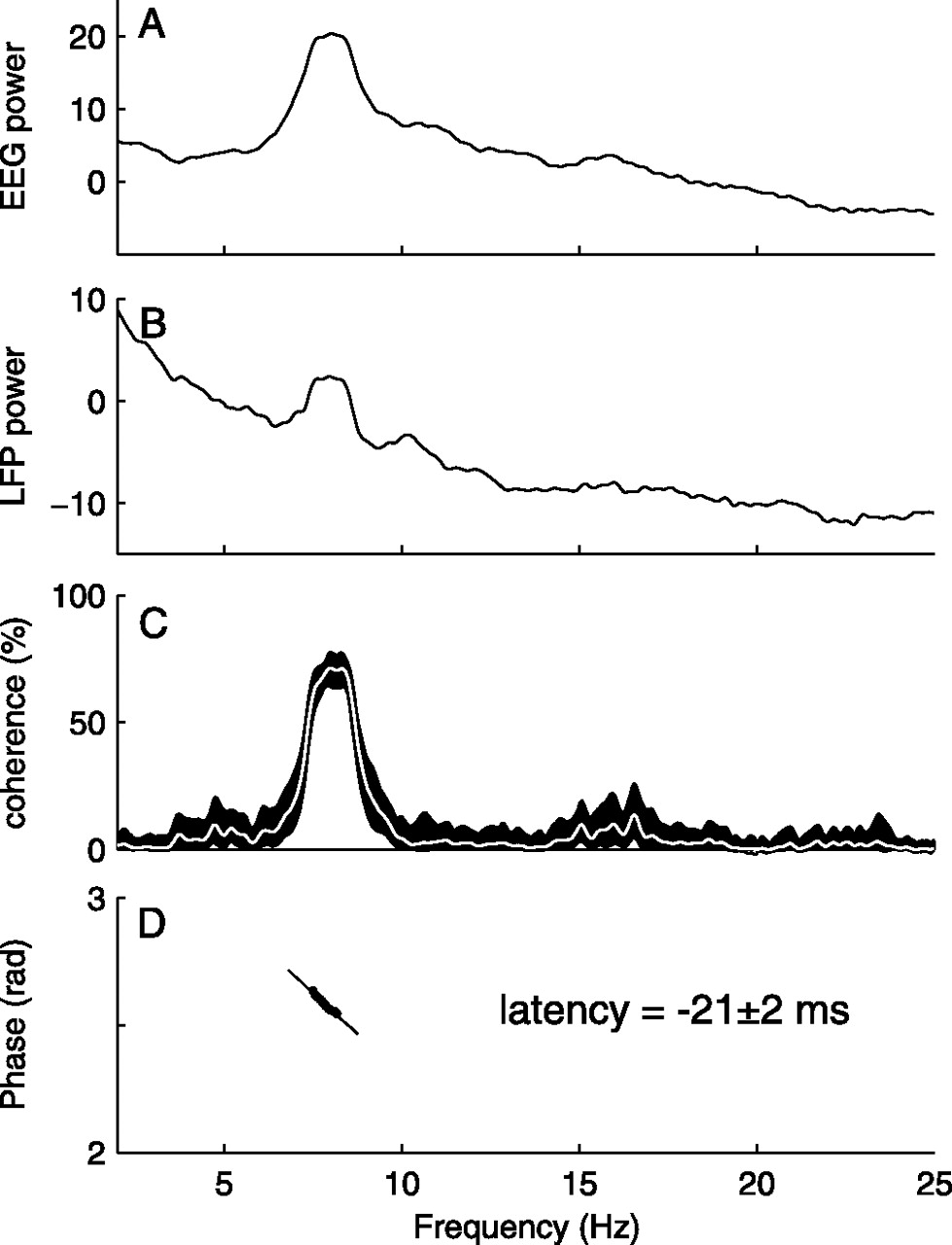 High Thalamocortical Theta Coherence in Patients with