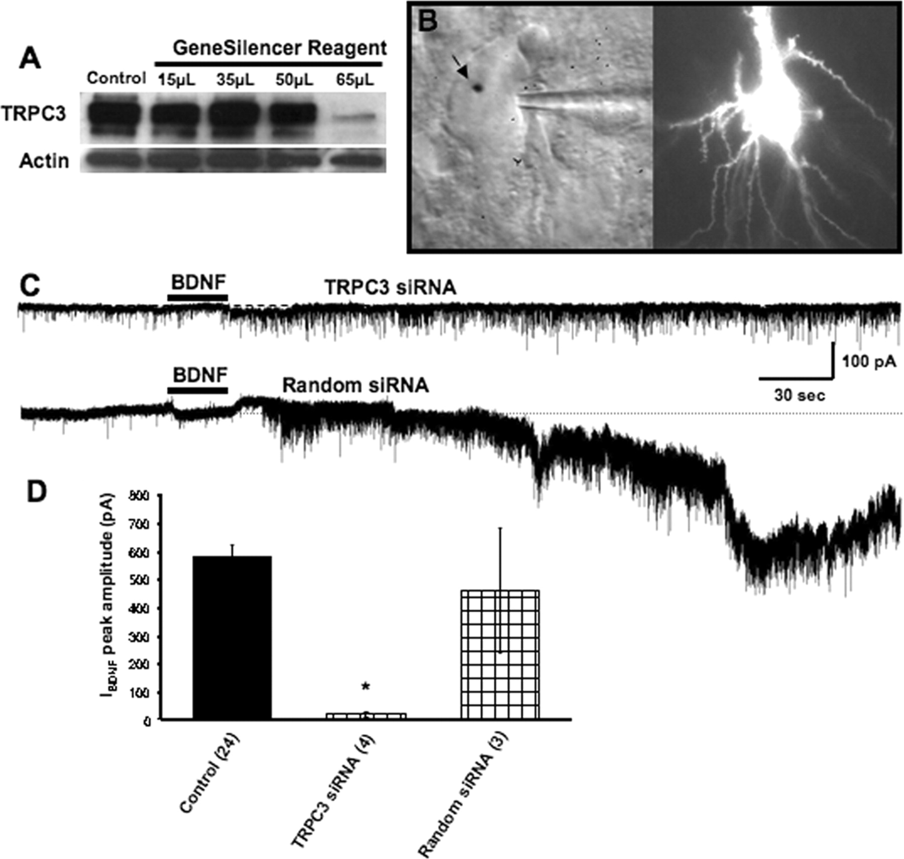 the l type and trpc channels in growth cone signalling To reduce the contribution of voltage-gated ca 2+ channels during tbs of afferent mfs, we performed the next series of simultaneous whole-cell recordings and ca 2+ imaging at depolarized potentials (+40 mv) with the addition of the l-type ca 2+ channel blocker nimodipine in the antagonists mixture.