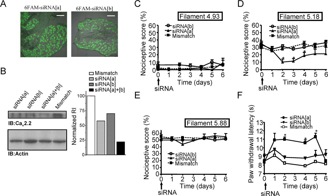 Differential Role of N-Type Calcium Channel Splice Isoforms in Pain