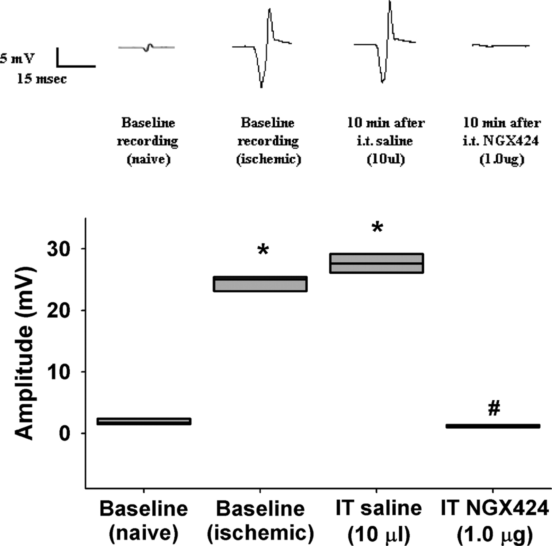 Spinal Astrocyte Glutamate Receptor 1 Overexpression after
