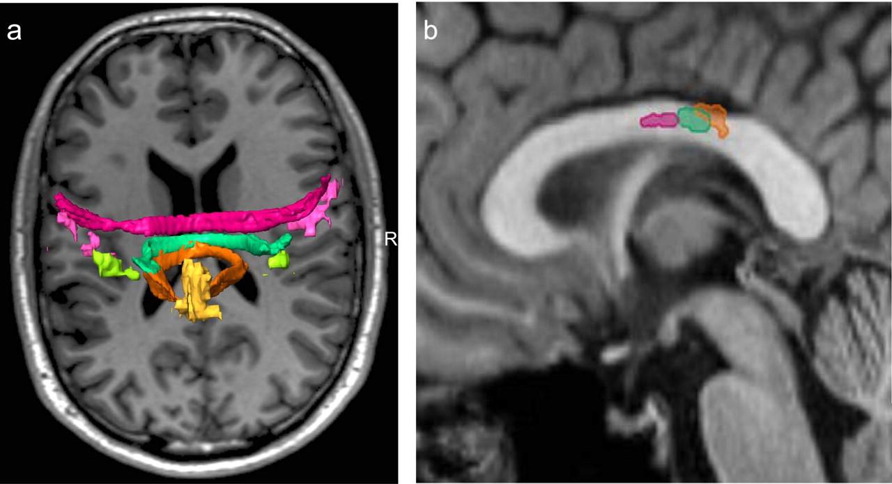 Figure 2. | Human Motor Corpus Callosum: Topography, Somatotopy, and ...