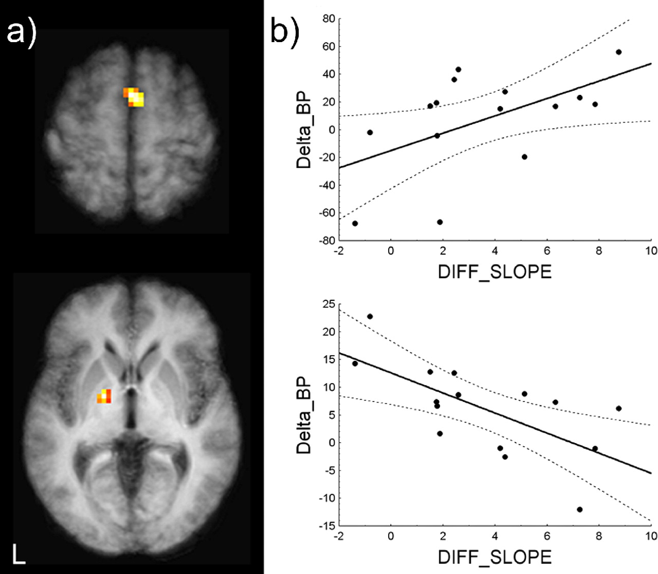 Task-Related Interaction between Basal Ganglia and Cortical Dopamine ...