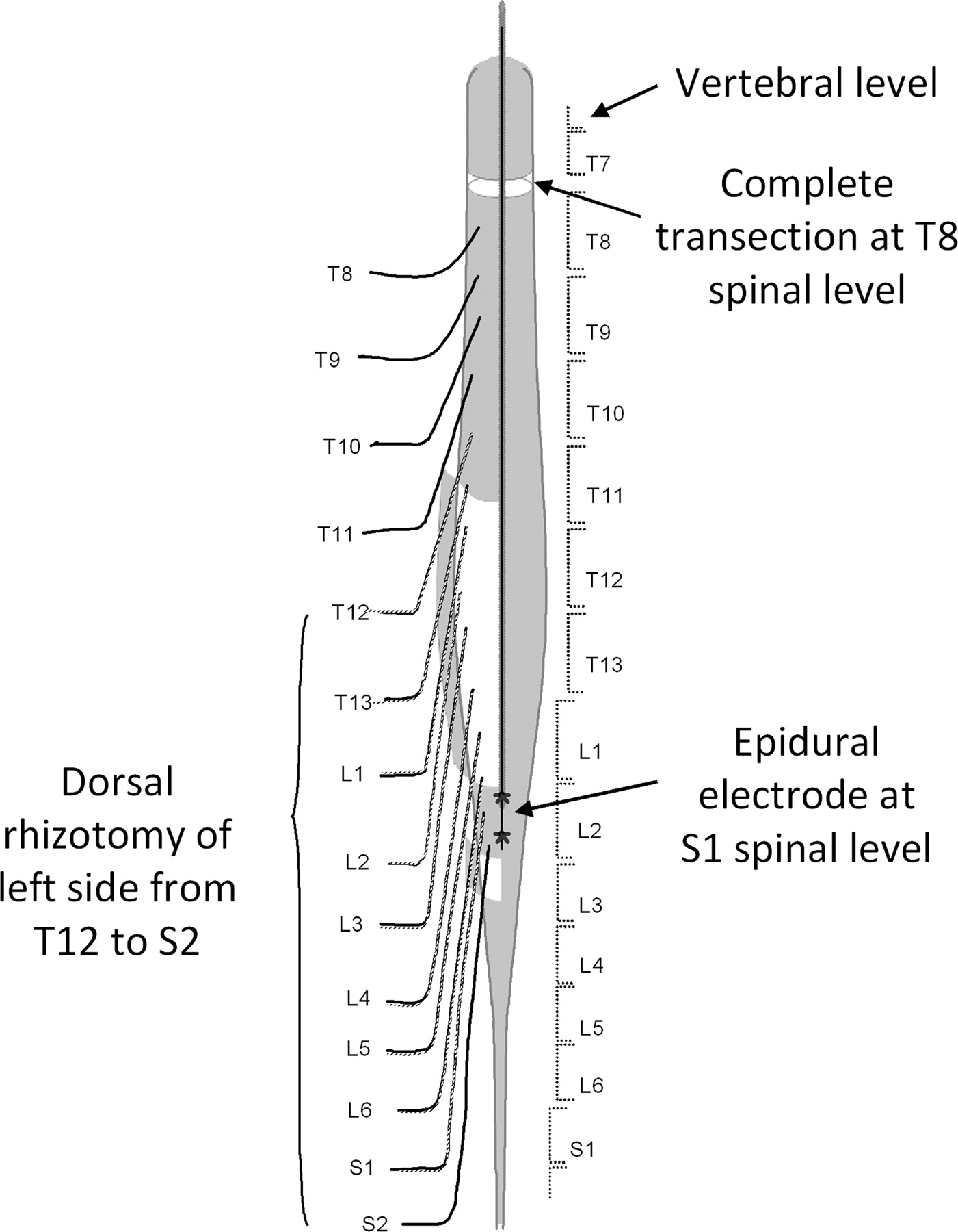 spine l2 diagram wiring diagrams