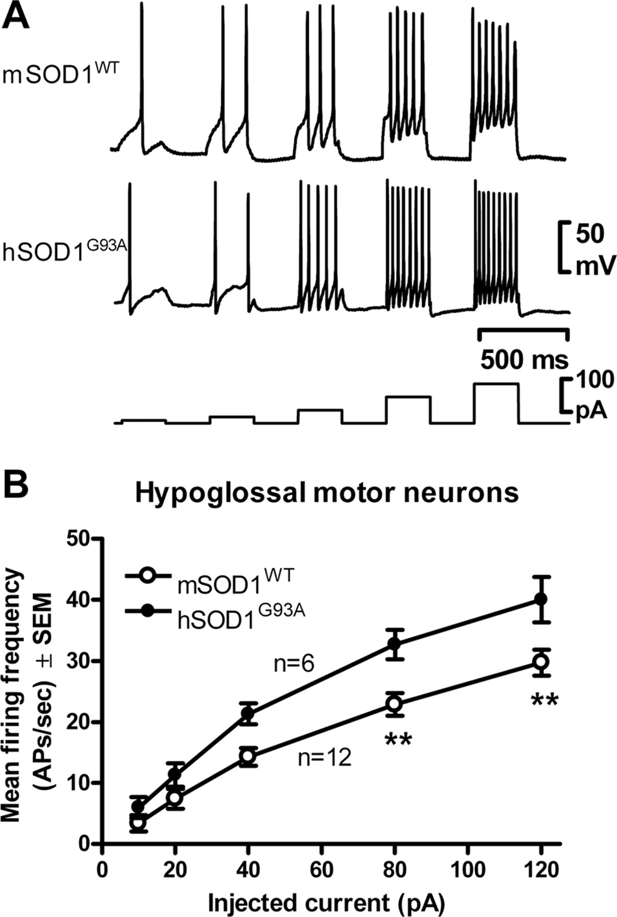 Neonatal Neuronal Circuitry Shows Hyperexcitable Disturbance In A Neural Circuits The Retina I Rhb Download Figure