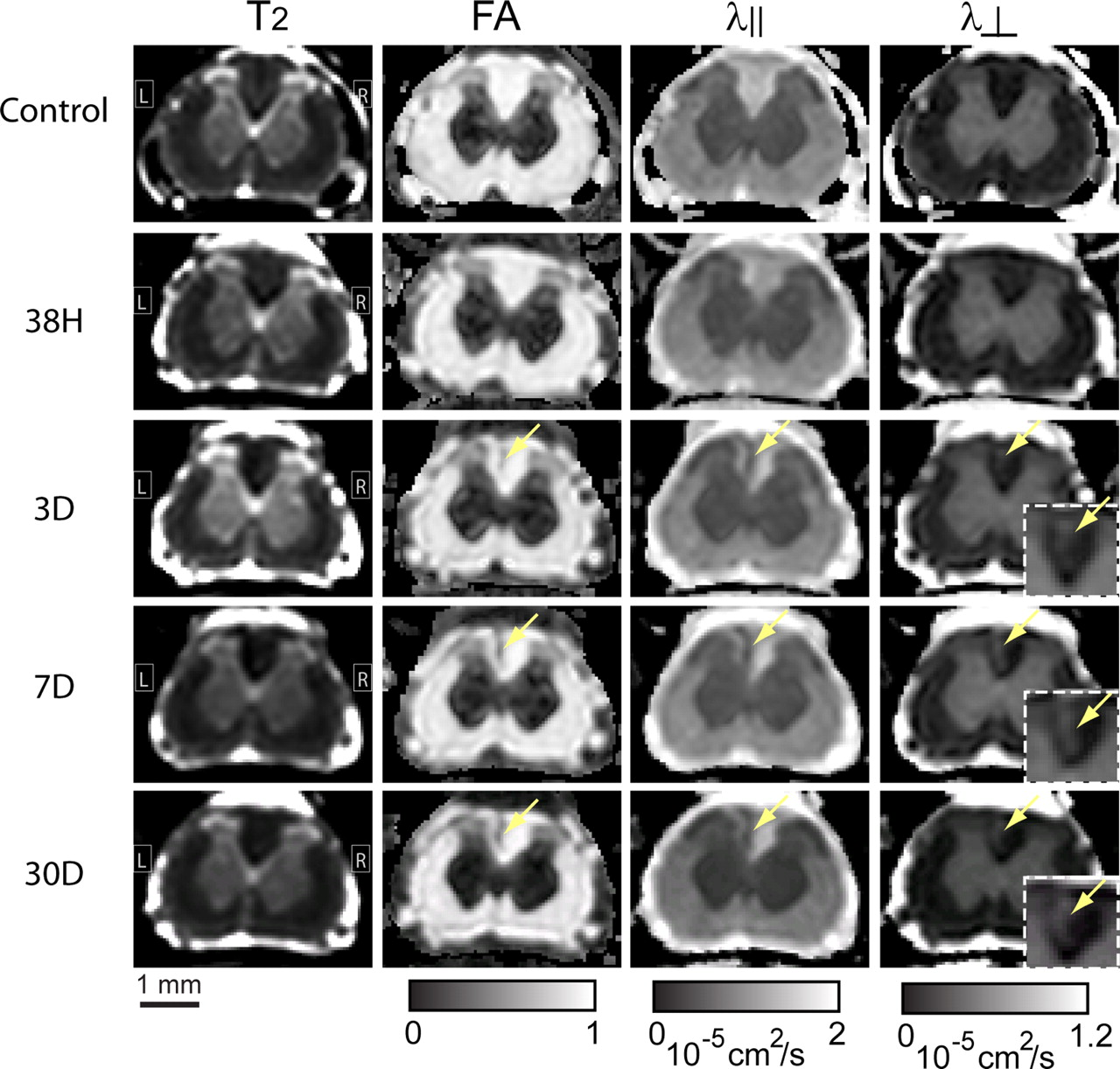 Diffusion Tensor Magnetic Resonance Imaging Of Wallerian