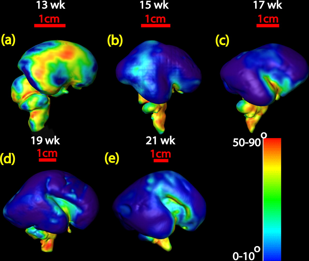 Anatomical Characterization of Human Fetal Brain Development with ...